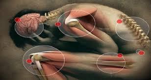 Resultado de imagem para pictures of pain body