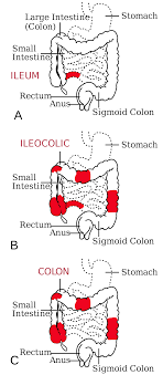 Crohn's disease - Wikipedia