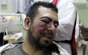 """""""This is real terrorism,"""" said Abdul Jalil Khalil, a parliamentarian from the main Shia opposition Wefaq bloc. """"Whoever took the decision to attack the ... - bahrain-injured_1828138c"""