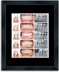 wall art decor sample picture dental teeth best roncent transparant white smile open mouth describe image best office posters