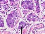 chief cells, gastric