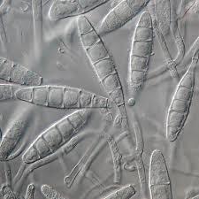 Microsporum gypseum