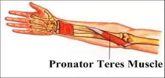 Pronator Syndrome