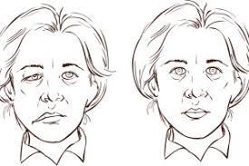 Afbeeldingsresultaat voor mimetherapie