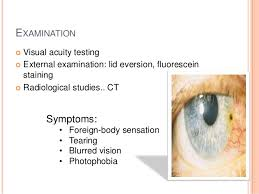Image result for foreign body in eye