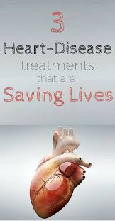 ideas about heart disease treatment heart 3 heart disease treatment breakthroughs that are changing lives