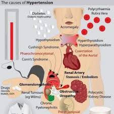 metabolic syndrome   interconnected conditions associated with high blood pressure  cholesterol and obesity SlidePlayer