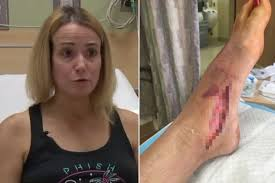 California woman contracts flesh-eating bacterial infection
