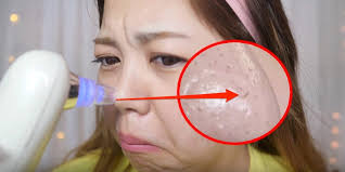Woman uses $30 dollar <b>blackhead vacuum</b> to clear gunk from her ...