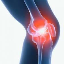 """Результат пошуку зображень за запитом """"коленный сустав"""""""