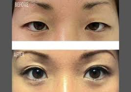 Image result for japanese women taping eyelids