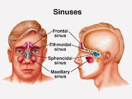 obat herbal radang sinusitis
