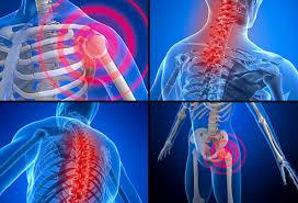 Bildresultat för fibromyalgia back pain down leg