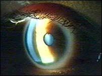 Image result for انواع العمى