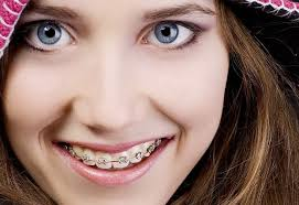 Kết quả hình ảnh cho niềng răng nhanh nhất bao lâu