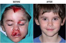 Reconstructive Surgery. Back to Before & After Categories · Reconstructive Surgery Before and After-1 - reconstructive-1