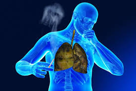 Image result for smoking and copd
