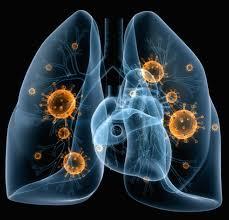 Apa Itu Penyakit Pneumonia & Simptomnya!