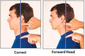 Image result for forward head posture