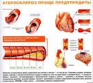 Атеросклероз сосудов народные рецепты