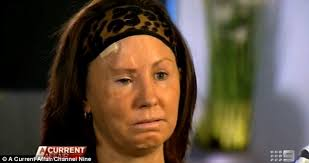 Traumatised: Simone O'Brien has spoken to Channel Nine's A Current Affair show about former boyfriend Glenn Cable who attacked her with a baseball bat - article-2621069-1D98C73B00000578-509_634x334