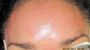 how to make money online very easy fast legit online jobs work rosacea treatment fotona laser