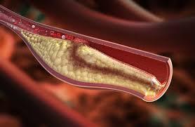 Resultado de imagen para Señales que alertan de colesterol alto y mal funcionamiento hepático