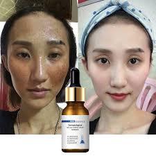 <b>30ML whitening FACE serum</b> facial skin serum vitamin c skin care ...