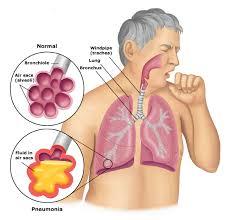 batuk pada paru-paru