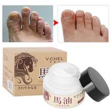 Foot Ointment Promotion-Shop for Promotional Foot Ointment on ...