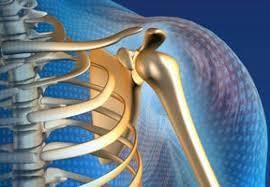 exemple de douleur orthopédique