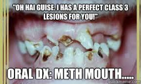 meth mouth memes | quickmeme via Relatably.com