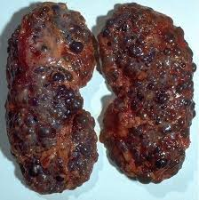 「嚢胞」の画像検索結果