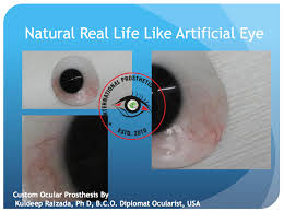 ... Kuldeep Raizada, BCO, BADO, make an excepptional high quality life like eyes in india for local as well as international Patients around the world. - Natural%2520LIfe%2520Like%2520Eyes