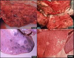 pengobatan paru-paru basah