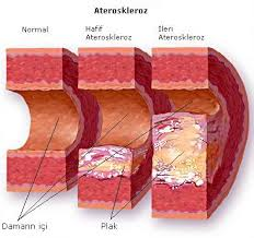Mengubah Pola Hidup Untuk Menurunkan Kolesterol Tinggi
