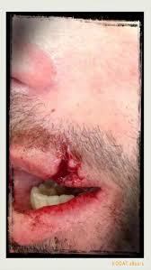 Resultado de imagem para foto ilustrada de um homem sendo agredido