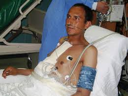 Resultado de imagen para fotos de transplante de corazon