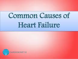 causes of heart disease essay   order essay online