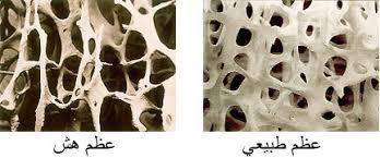 العظام للنساء