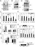 ribonucleoprotein, u7 small nuclear