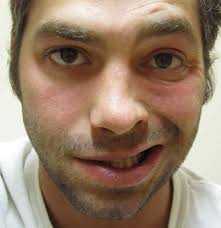 Bell's palsy: Causes, sym