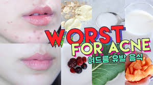 WORST FOODS FOR ACNE! • Get Rid of Hormonal Acne Naturally ...