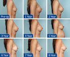 Images & Illustrations of breast augmentation