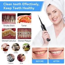 <b>Electric</b> Ultrasonic Sonic Dental Scaler <b>LED Display</b> Tooth Calculus ...