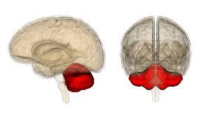 「除脳固縮」の画像検索結果