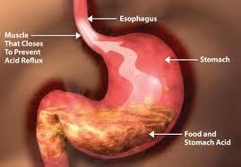 Obat Herbal Penyakit Asam Lambung Tinggi