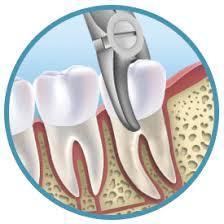 Znalezione obrazy dla zapytania extract teeth