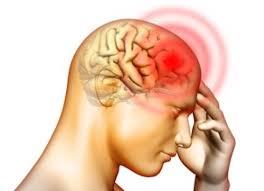 Image result for sakit kepala kena panas