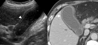 Imagini pentru gallbladder wall layers